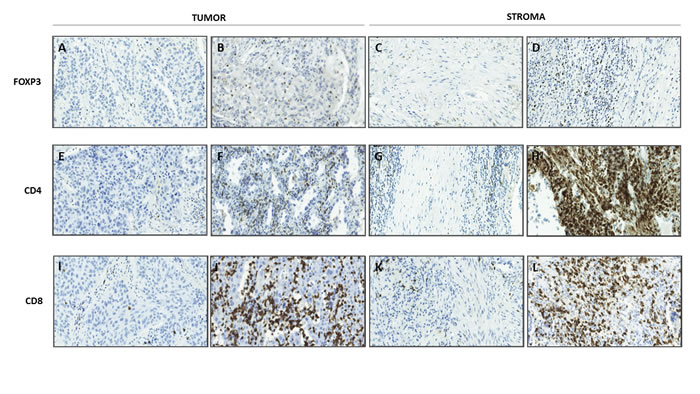 Representative immunohistochemical staining of FOXP3, CD4 and CD8 in tumor and stroma compartments.