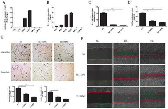 IL-11 promotes invasive and migratory potential in ATC cells.