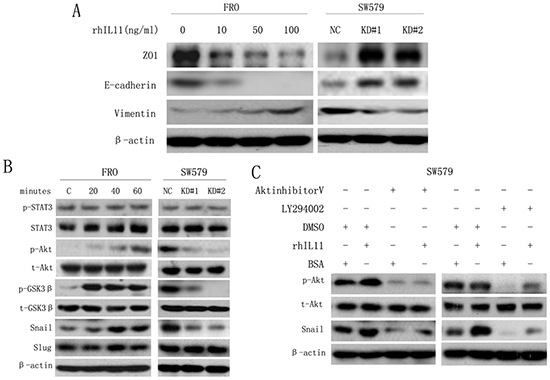 IL-11 induces EMT in ATC cells via the PI3K/Akt/GSK3β signaling pathway.