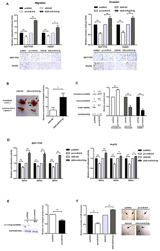 The influence of miR-615-5p on HCC cell motility, adhesion and vasculogenic mimicry.
