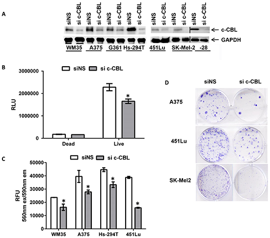 Knockdown of c-CBL reduces cellular viability and clonogenicity of melanoma cells.
