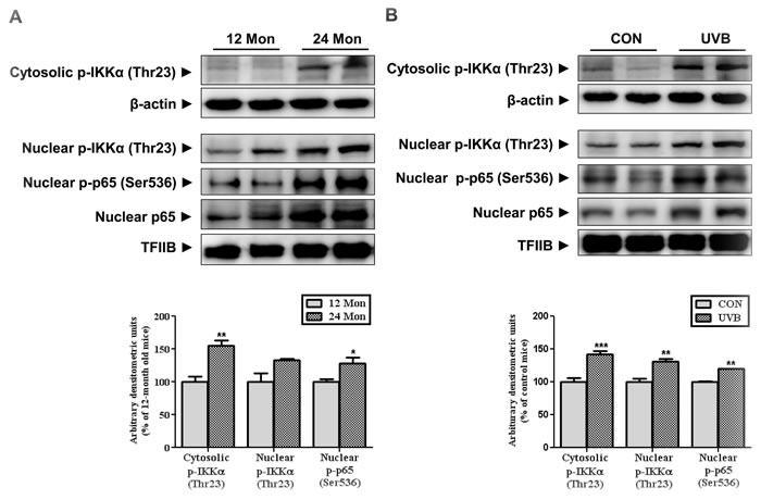 The levels of IKKα and p65 phosphorylation during skin aging.