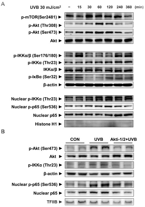 The activation of mTORC2 and its downstream signaling by UVB irradiation in HaCaT cells.