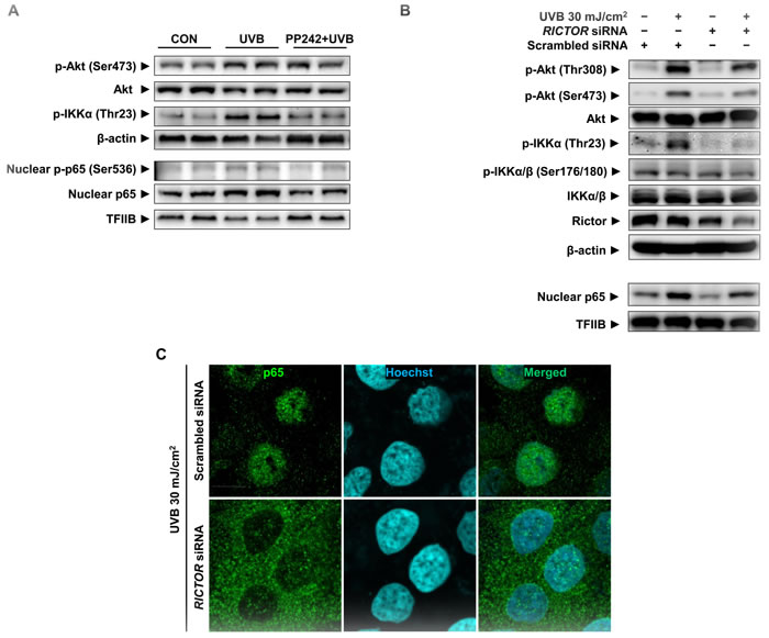 Attenuation of UVB-induced p65 activation by mTORC2 inhibition in HaCaT cells.