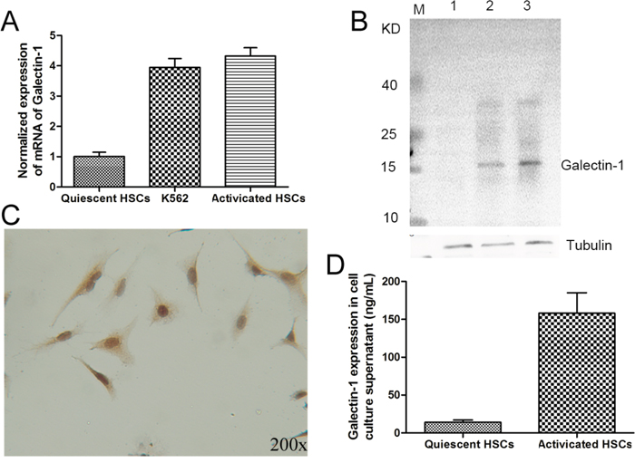 The expression of galectin-1 in human HSCs.