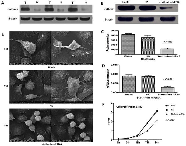 Efficacy of stathmin-shRNA in lung adenocarcinoma cells.