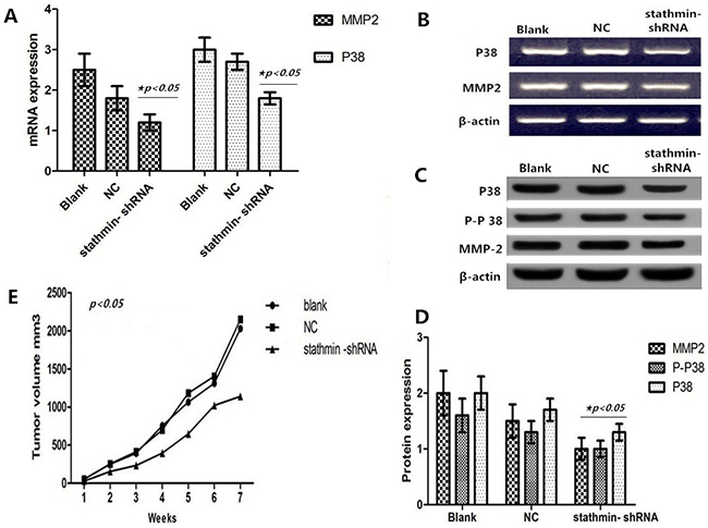 Effect of stathmin silencing on the P38 signally pathway in vitro.