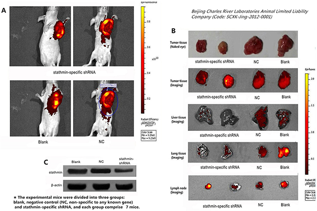 Effect of stathmin silencing on transplantation tumors growth in nude mice.