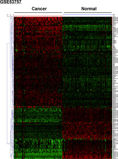 Microarray analysis showing differential expression of lncRNAs between ccRCC and normal renal tissue in the GSE53757 dataset.