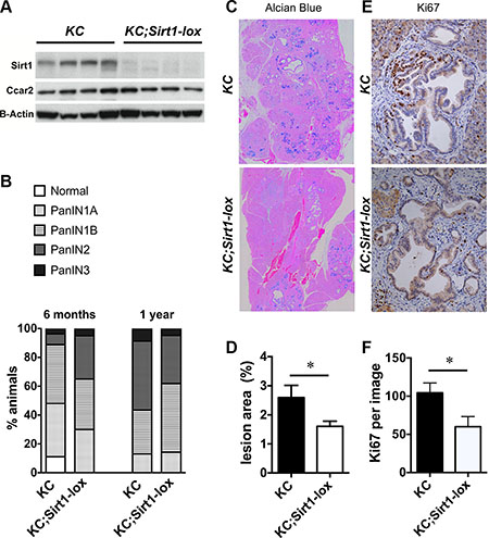Pancreatic lesions in KC and homozygous KC;Sirt1-lox mice.