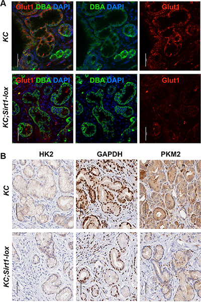Expression of glycolytic proteins in murine SIRT1-deficient PanIN lesions.