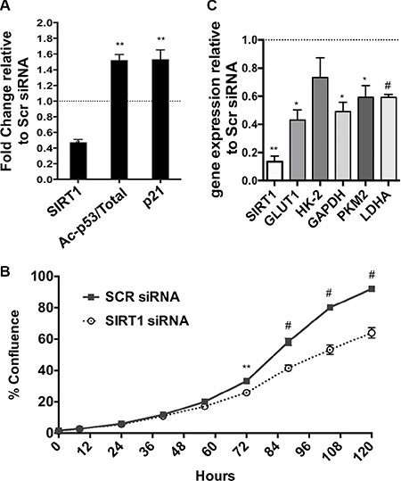 Effects of SIRT1 siRNA in human PDAC cells.