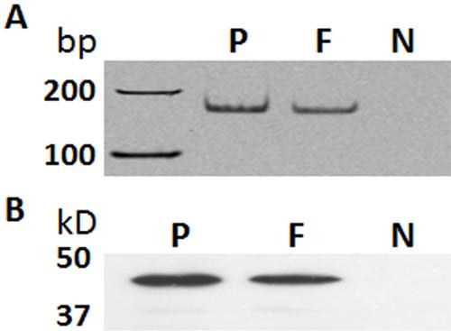 Expression of GHRH receptor (GHRH-R) in primary human dermal fibroblasts.
