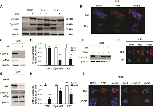 Cellular quiescence induced by 5FU, VP and YAP knockdown in 5F31 cells is associated to decreased in Cyclin E1 levels.
