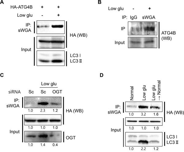 Low glucose condition promotes O-GlcNAcylation of ATG4B.