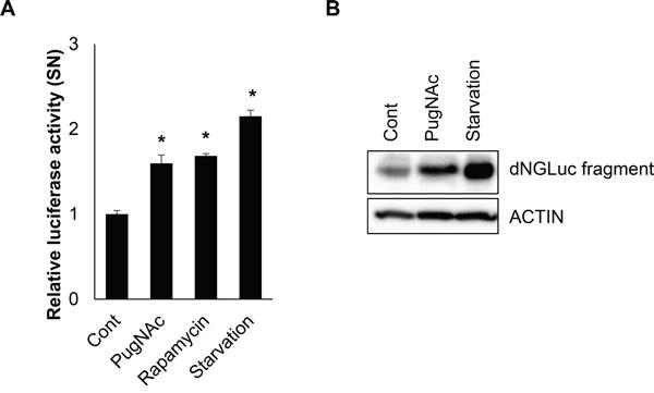 O-GlcNAcylation of ATG4B enhances proteolytic activity of ATG4B.