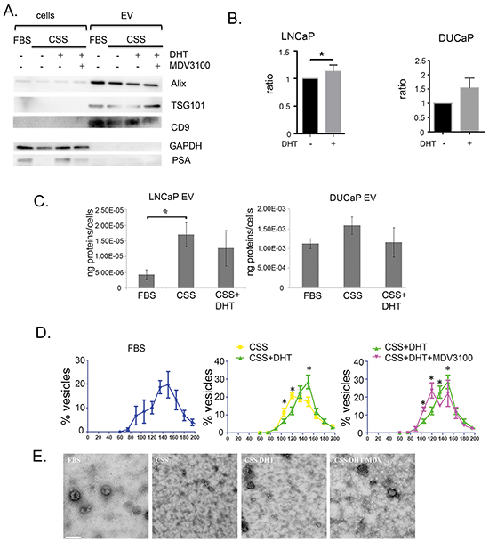 Characterisation of EV in prostate cancer cell lines treated with physiological androgen DHT or under androgen ablation.