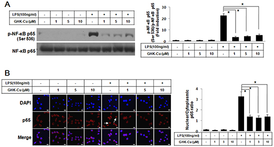 GHK-Cu blocked LPS-induced nuclear translocation of NF-κB p65 and phosphorylation of NF-κB p65 in LPS-induced RAW 264.7 cells activation.