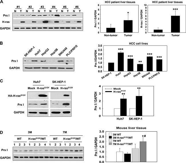 Prx I overexpression linked with oncogenic Ras expression in HCC patient tissues, HCC-H-rasG12V cells, and the H-rasG12V Tg mice hepatic-tumor region.