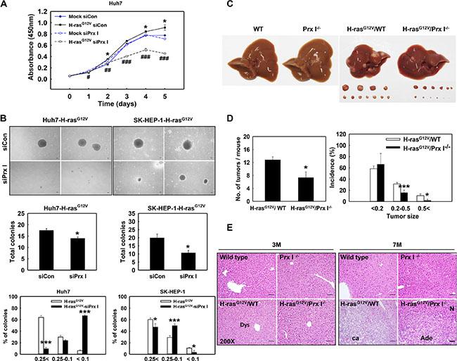 Prx I promoted Ras-induced hepatocarcinogenesis.
