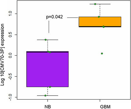 Cytomegalovirus expresses viral miRNAs in the neoplastic tissue of glioma patients.