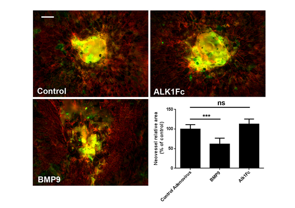 Alk1 signaling regulates neovascularization in mice subjected to laser-CNV.