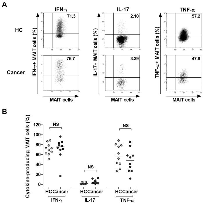 Expression of IFN-γ, IL-17 and TNF-α in MAIT cells of MAC patients.