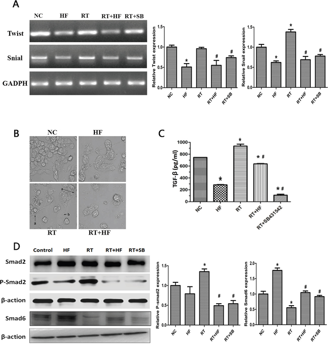 Effects of halofuginone and radiation on TGF-β1 signaling and EMT.