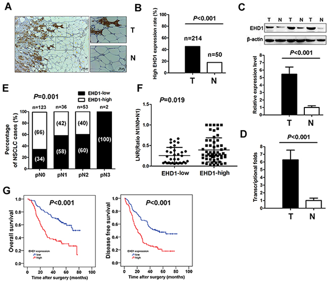 Increased EHD1 expression in NSCLC patients is associated with lymph nodes metastasis and poor survival.