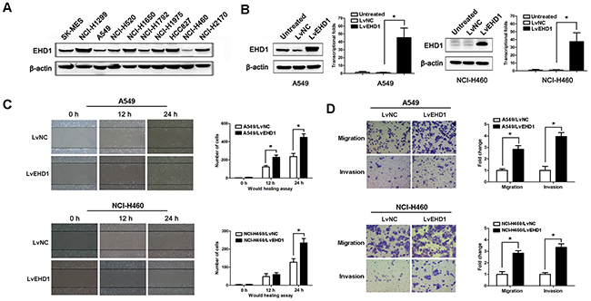EHD1 increases the motility and invasive properties of non-small cell lung cancer cells.