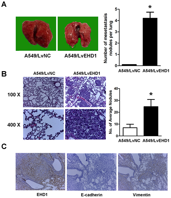 Effect of EHD1 overexpression on metastasis in vivo.