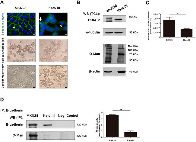 E-cadherin O-mannosylation decreases in undifferentiated gastric cancer cells.
