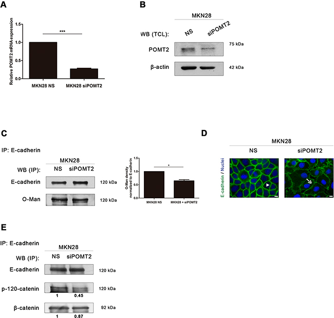 POMT2 knockdown impairs membrane E-cadherin localization and the assembly of the E-cadherin-catenin complex.