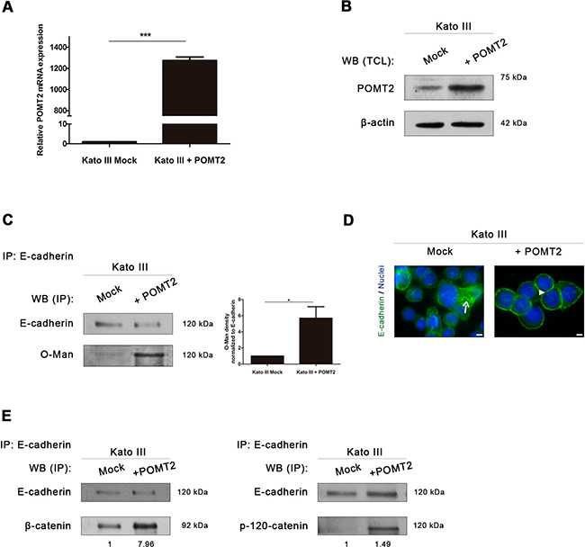 POMT2 overexpression induces the recovery of E-cadherin biological functions.