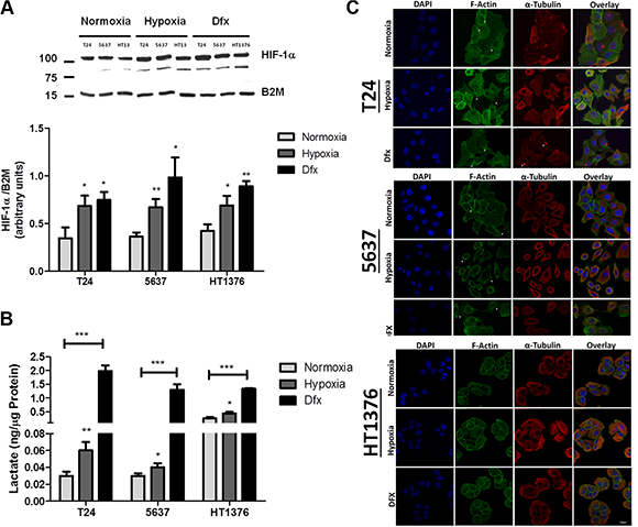 Molecular and morphological changes induced by hypoxia in bladder cancer cell lines.