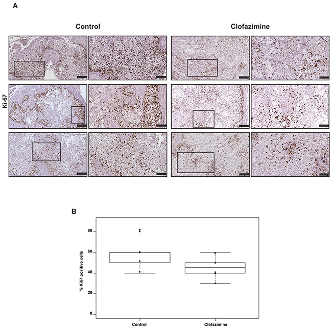 Clofazimine treatment slightly reduced the number of Ki67 positive cells in orthotopic pancreatic tumour model derived from Colo357 cell line.