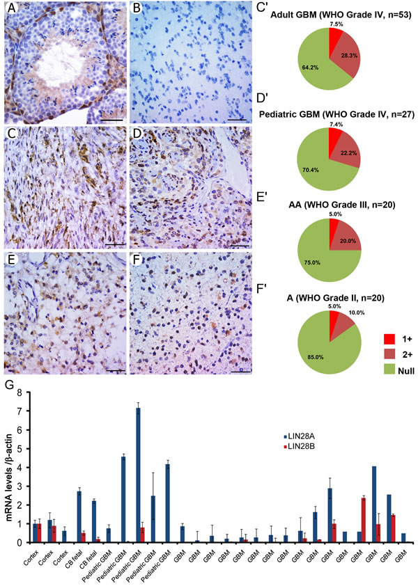 LIN28A protein is expressed in human primary glioma samples, with highest expression in GBM and anaplastic astrocytoma.