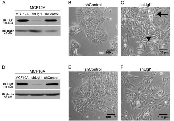 Llgl1 expression regulates cell morphology.