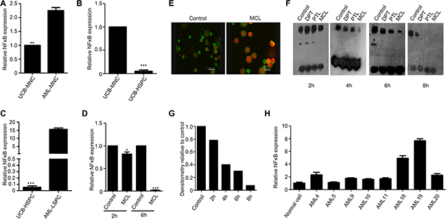 MCL inhibits NF-κB expression and activity in leukemic cells.