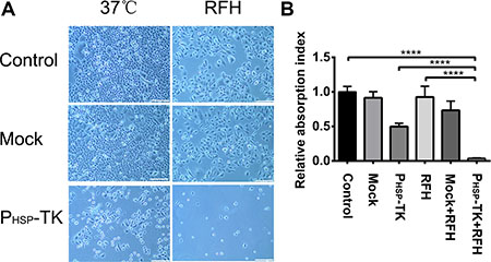 Results of in vitro experiments showing the cell phenotypes of MCF7/Adr after RFH-mediated gene therapy.