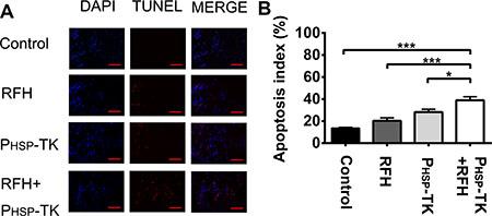 Apoptosis assay of tumor tissues.