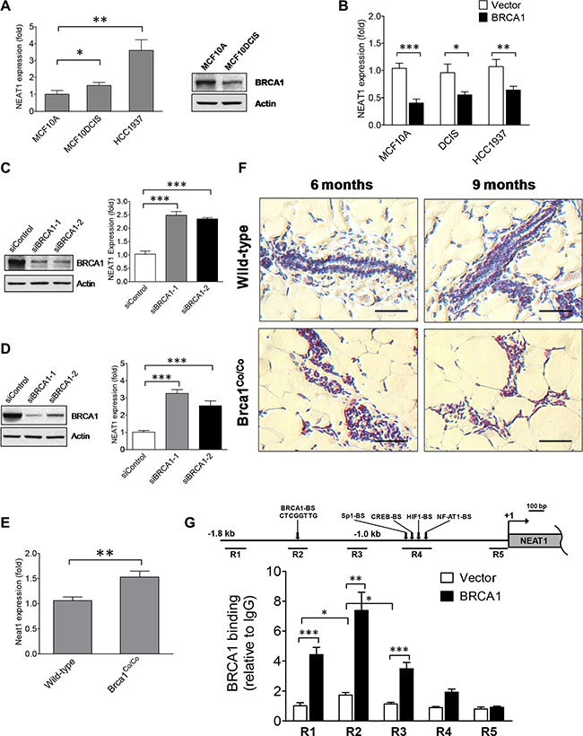BRCA1 functions as an upstream regulator to inhibit the expression of the NEAT1 gene.