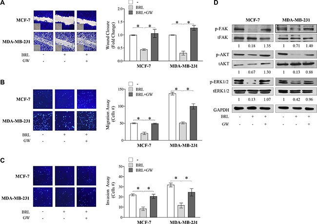 Effects of BRL on motility and invasion of MCF-7 and MDA-MB-231 breast cancer cells