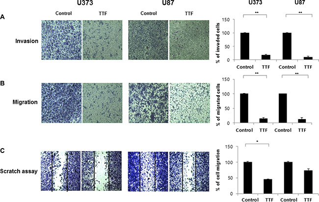 TTF inhibits migration and invasion of GBM cells.