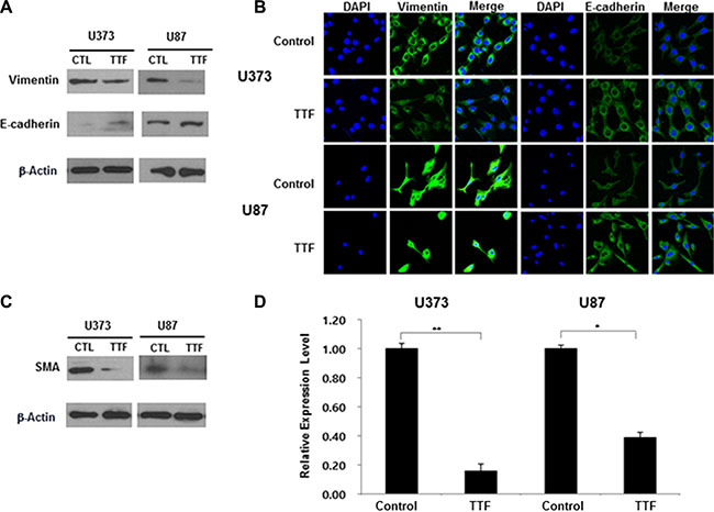TTF regulates EMT protein levels and EMT-related genes in GBM cells.