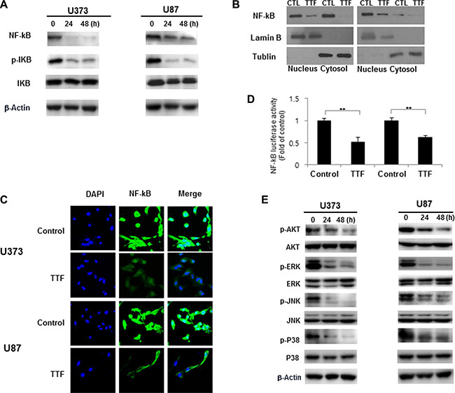 TTF suppresses GBM cancer cell invasion through inhibition of MMP-2 and 9 via the NF-κB pathway.
