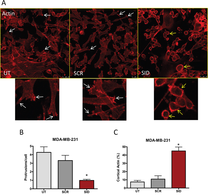 Induction of actin and microtubule cytoskeletal reorganization by SID peptide treatment in MDA-MB-231 cells.