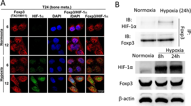Foxp3 can bind with HIF-1α in hypoxia condition.