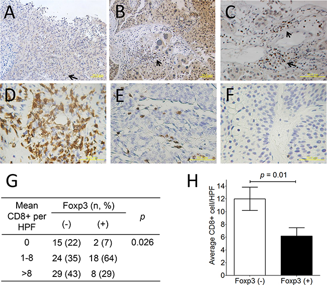 Foxp3 protein expression and CD8+ lymphocyte in human bladder cancer.