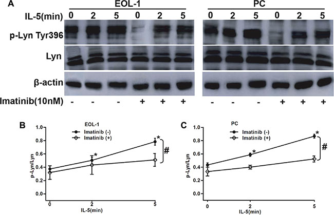 The synergistic role of F/P and IL-5 in inducing Lyn activation in EOL-1 and PC cells.